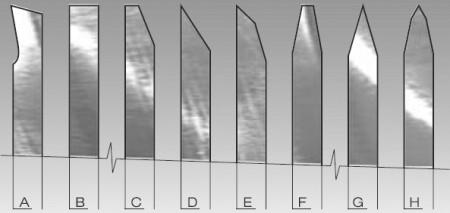 歯の形状の画像